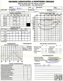Audiogram, or hearing test profile showing hearing loss levels