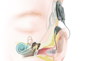 Diagram of a person and the cochlear implant in place.